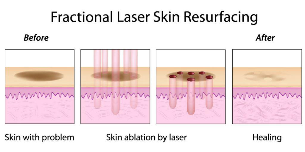 Γιώργος Τύρος - Δερματολόγος Αφροδισιολόγος - Νέα Σμύρνη - laser treatments