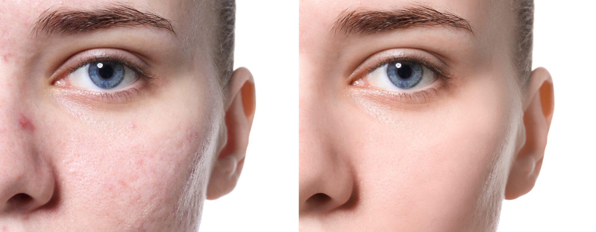 Γιώργος Τύρος - Δερματολόγος Αφροδισιολόγος - scar treatments